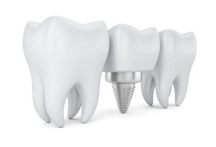 Implantologie und professionelle Chirurgie